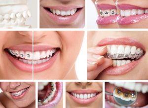Orthodontics from Lawrenceburg dentist, Dr. Brian Oyler, improves oral health and appearance. Learn about traditional and cutting edge options.