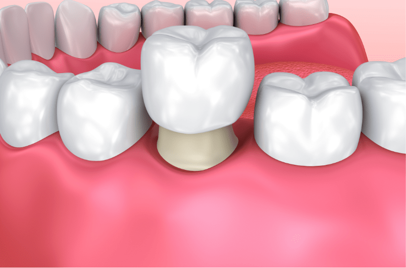 computer illustration of dental crown on tooth