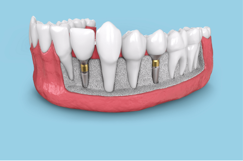 computer illustration of a dental implant in jaw bone