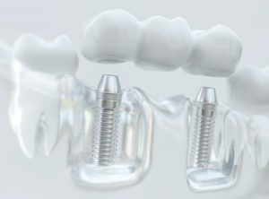 dental implant and restoration bridge