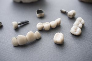 A pile of dental restorations.