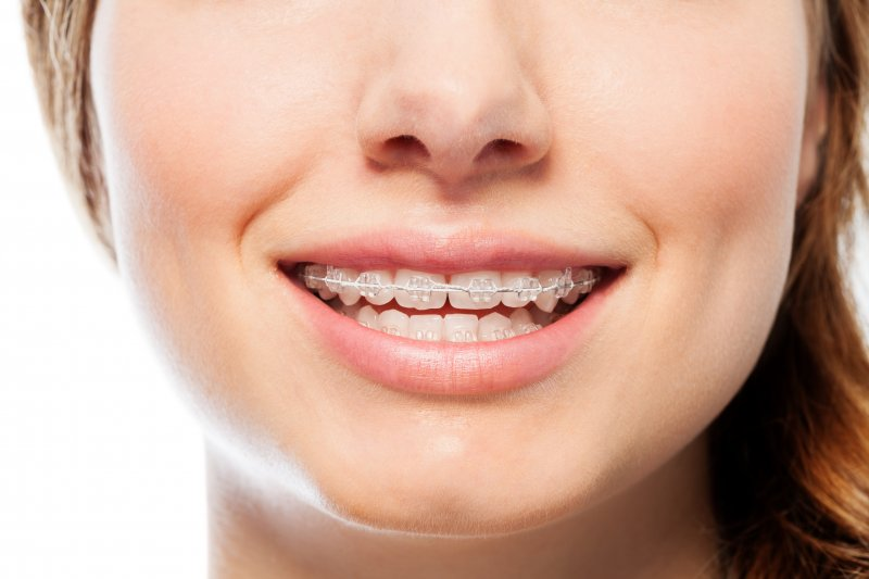 attractive young woman wearing ceramic braces
