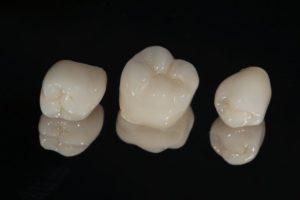 closeup of dental crowns in Lawrenceburg on dark background